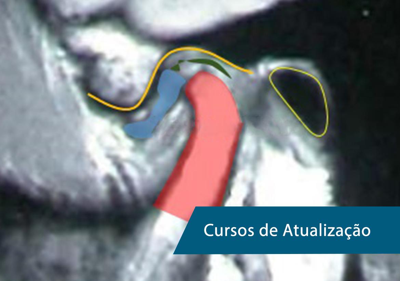 Diagnóstico por imagem em Patologia da ATM